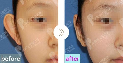 韩国profile医院郑在皓耳整形中心招风耳矫正案例正面照