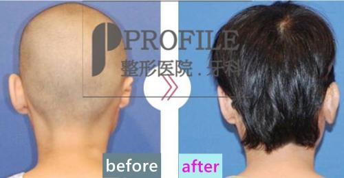 韩国profile整形外科郑在皓小耳症矫正案例背面照