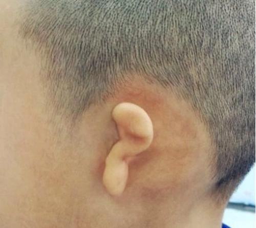 小耳症、先天性小耳畸形给孩子身心健康带来的影响