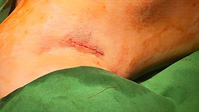 profile隆胸腋下疤痕