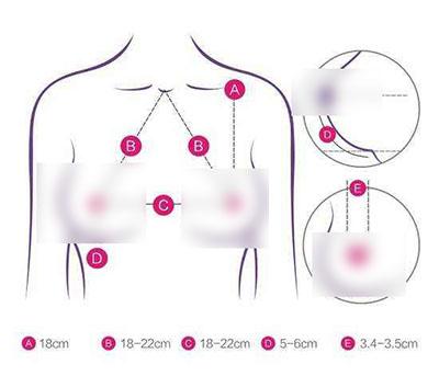 韩国普罗菲耳五点共心综合隆胸设计